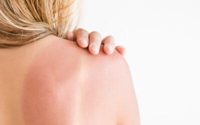 Die besten Tipps gegen Sonnenbrand!